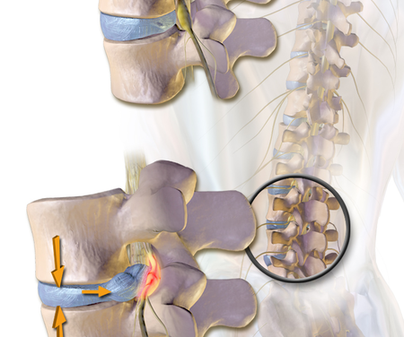 What Can Massage Therapy Do For Disc Herniation?