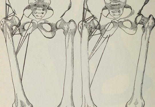 Should You Fix Leg Length Discrepancy?
