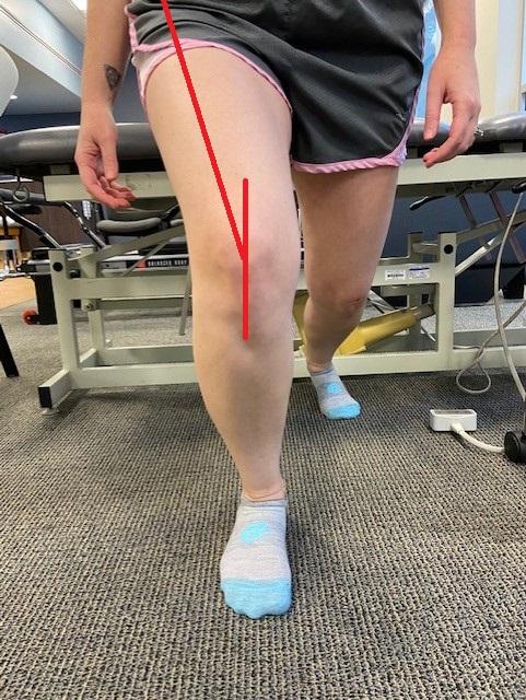 Q angle measurement normal knee
